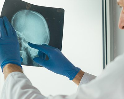 traumatic brain injury law firm suffolk county ma